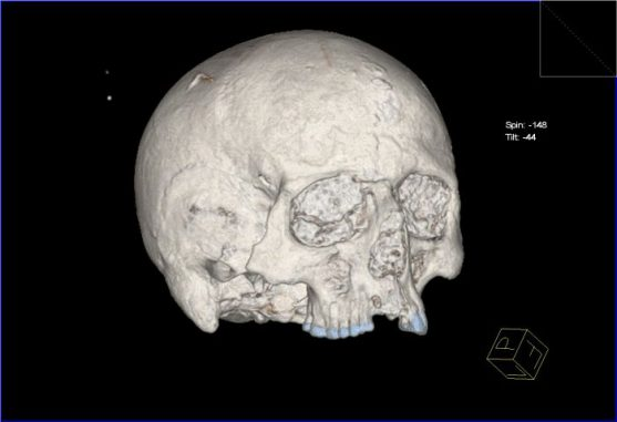 CT-Scan des Schädels (York Archaeological Trust)