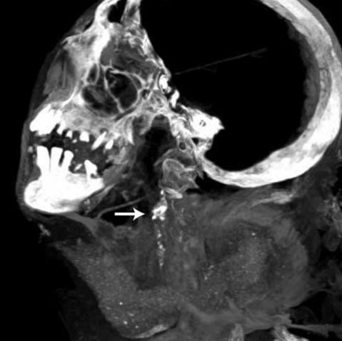 Der Pfeil deutet auf eine Verkalkung in der linken Carotis-Arterie (Michael Miyamoto)