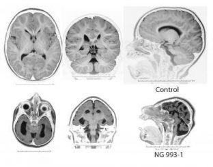 Magnetresonanztomografien eines gesunden Gehirns (oben) und eines Gehirns mit Mikrozephalie (unten) (Courtesy of Yale University School of Medicine)