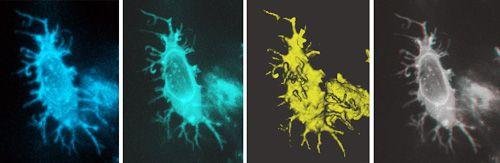 Mikroskopische Bilder einer osteozytenähnlichen Struktur. Osteozyten sind Zellen, die Typ-I-Kollagen produzieren. (Johan Lindgren)