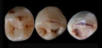 Prähistorische Zähne (Rolf Quam)