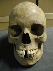 Ein Schädel vom East Smithfield Black Death Cemetery (Museum of London)