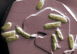 Bakterien unter dem Mikroskop. (Pacific Northwest National Laboratory)