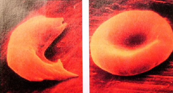 Ein sichelförmiges rotes Blutkörperchen (links) im Vergleich zu einem normalen roten Blutkörperchen (rechts). (Carnegie Institution for Science)