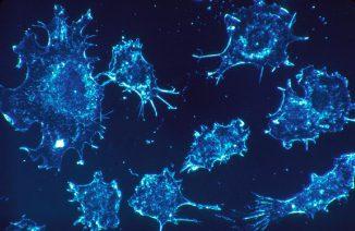 Krebszellen in menschlichem Bindegewebe, 500-fach vergrößert. (Dr. Cecil Fox / National Cancer Institute)