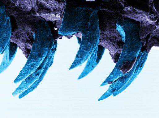Napfschneckenzähne unter dem Elektronenmikroskop. (Image courtesy of University of Portsmouth)