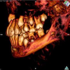 CT-Aufnahme des Schädels, auf der einige Milchzähne zu erkennen sind (Photo by David Hunt, Smithsonian Institution)