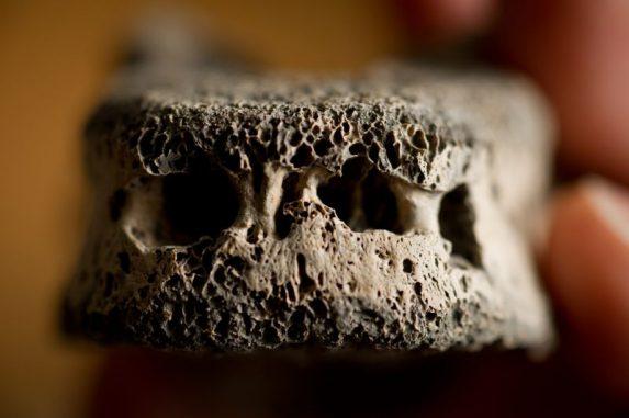 Dieser 1.000 Jahre alte Knochen wurde von Brucellose befallen (Photo by G.L. Kohuth)