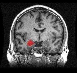 MRI-Scan eines menschlichen Gehirns mit eingefärbter Amygdala (nur einer der paarig vorhandenen so genannten Mandelkerne ist rot gekennzeichnet (Amber Rieder, Jenna Traynor, Geoffrey B Hall / Wikimedia Commons / CC0)