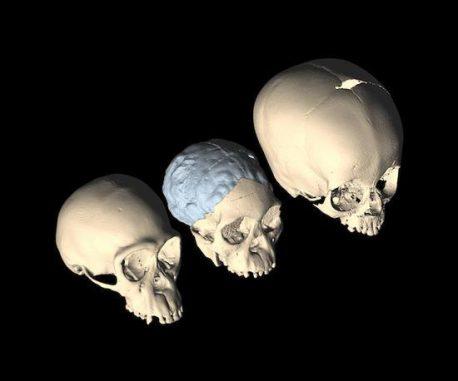 Das Taung-Fossil (Mitte) im Vergleich zu den Schädeln eines jungen Schimpansen (links) und eines Menschen (rechts) (CT-based images by M. Ponce de León and Ch. Zollikofer, University of Zurich)