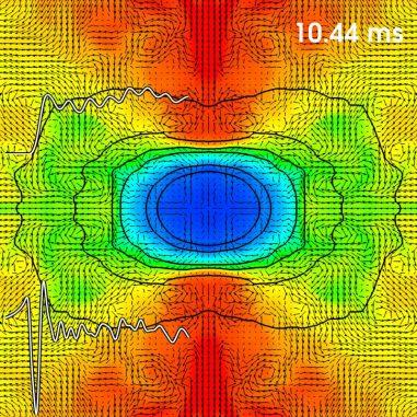 Die inneren Regionen eines kollabierenden, schnell rotierenden, massereichen Sterns. Rote Bereiche sind sehr heiß, blaue Gebiete sind kühler. Die schwarzen Pfeile kennzeichnen die Richtungen der Materieströme. Die weißen Grafen zeigen das Neutrino-Signal (oben) und das Gravitationswellen-Signal (unten). Zeitpunkt: 10,44 Millisekunden nachdem der stellare Kern zu einem Proto-Neutronenstern wurde. (Simulation: C. Ott, Visualization: S. Drasco)