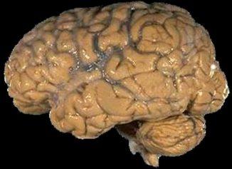 Ein menschliches Gehirn. (National Institutes of Health)