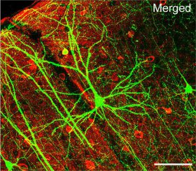 Ein Pyramiden-Neuron in der Großhirnrinde einer Maus. Die Verästelungen (Dendriten) sind gut erkennbar. (Wei-Chung Allen Lee, Hayden Huang, Guoping Feng, Joshua R. Sanes, Emery N. Brown, Peter T. So, Elly Nedivi)