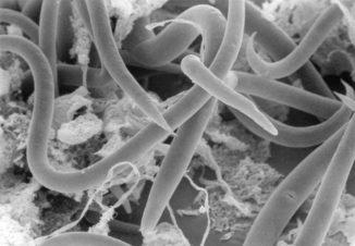 Antarktische Fadenwürmer (Panagrolaimus sp. DAW1) unter dem Mikroskop. (Credit: David Wharton)