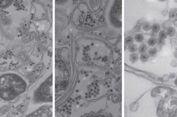 Elektronenmikroskopaufnahmen von marinen Bakterien, die mit den schwanzlosen Viren infiziert wurden. Die Bakterienzellen sind als lange, doppelte Linien erkennbar. Die Viren sind kleine runde Objekte mit dunklen Zentren. (Credits: MIT / Polz & Kauffman et al.)