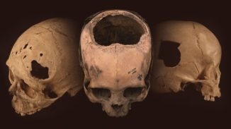 Prähistorische Schädel mit Trepanationslöchern. (Credit: University of Miami)