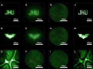 Die Bilder A-C zeigen Kügelchen auf einem Objektträger, beobachtet durch ein normales Mikroskop. D-F zeigen die Kügelchen durch ein konventionelles, linsenbasiertes Mikroendoskop. G-I zeigen Rohdaten des neuen, linsenlosen Mikroendoskop. J-L sind die Endergebnisse der Bildrekonstruktion. (Image credit: Courtesy of Mark Foster)